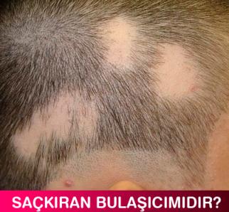 Alopecia Areata Bulaşır mı?